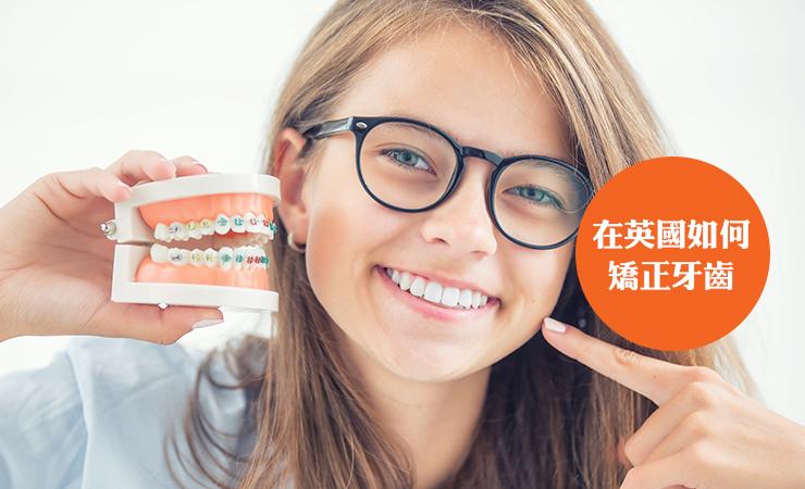 在英国如何矫正牙齿?
