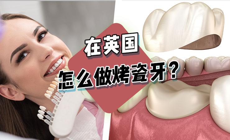 在英国怎么做牙冠(烤瓷牙、全瓷牙、牙贴片)?